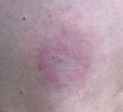 На месте укуса клеща появилось красное пятно