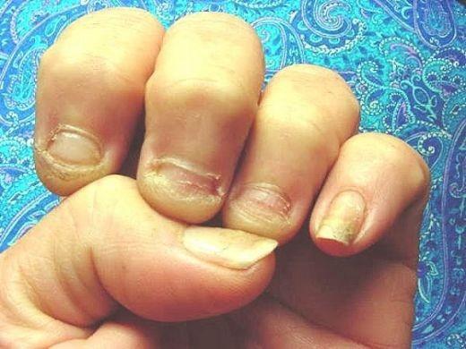 Что показать ребенку. чтобы не грыз ногти